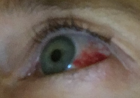 bloody-eyeball