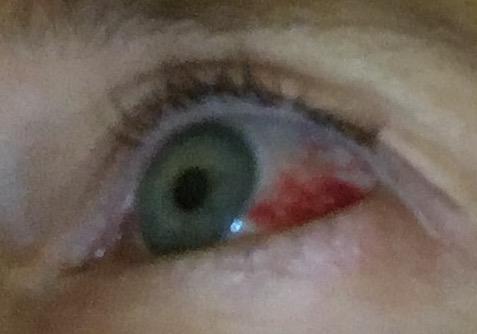 bloody-eyeball